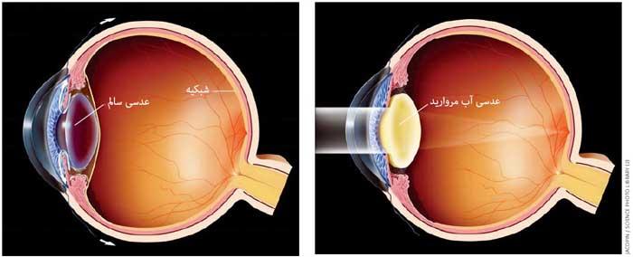 مقایسه چشم سالم و چشم دچار آب مروارید