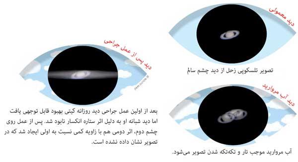 تصویر تلسکوپی زحل از دید فرد دچار آب مروارید