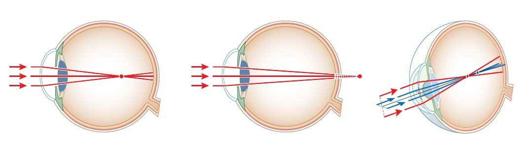 عیبهای کلاسیک چشم